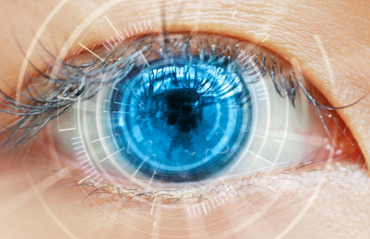Lasik surgery with lady with blue eye